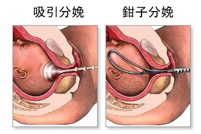 後遺症 帝王 切開 妊婦さん必見!帝王切開後の体の変化と傷の変化